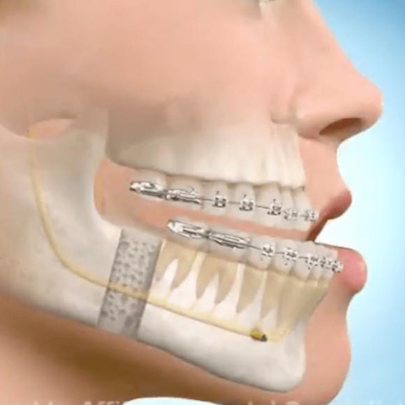 Cirurgia Ortognatica